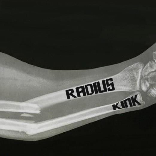 Radius Kink
